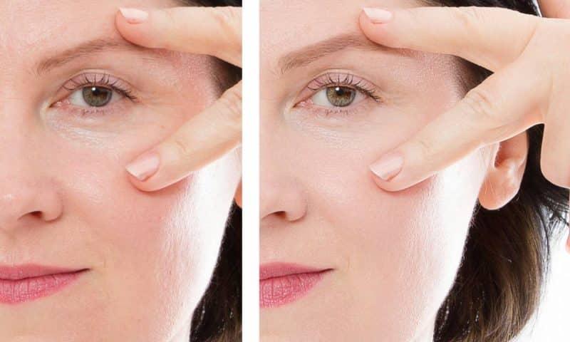 Comment utiliser l'acide hyaluronique sur votre peau ?